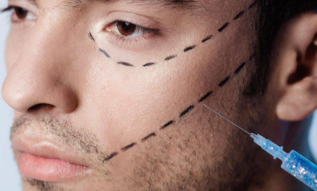Botox becomes 'Brotox' – the new weapon in the armoury of thousands of British men
