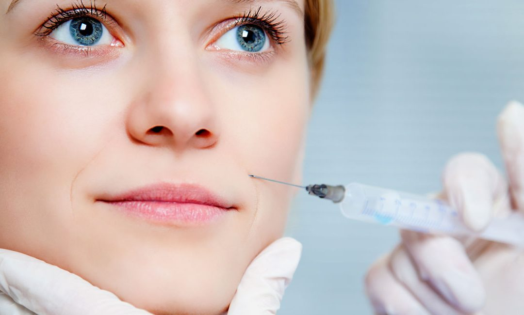 Marionette lines – what are they and how Dermal Fillers can help