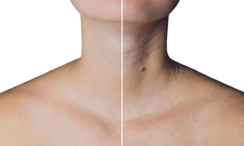 Botox Neck Treatments – What are They and How Does It Help?
