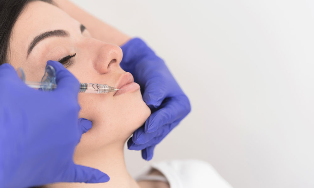 Tips for Avoiding Botched Lip Fillers
